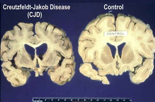 profundiza 1516 cerebro vacas locas