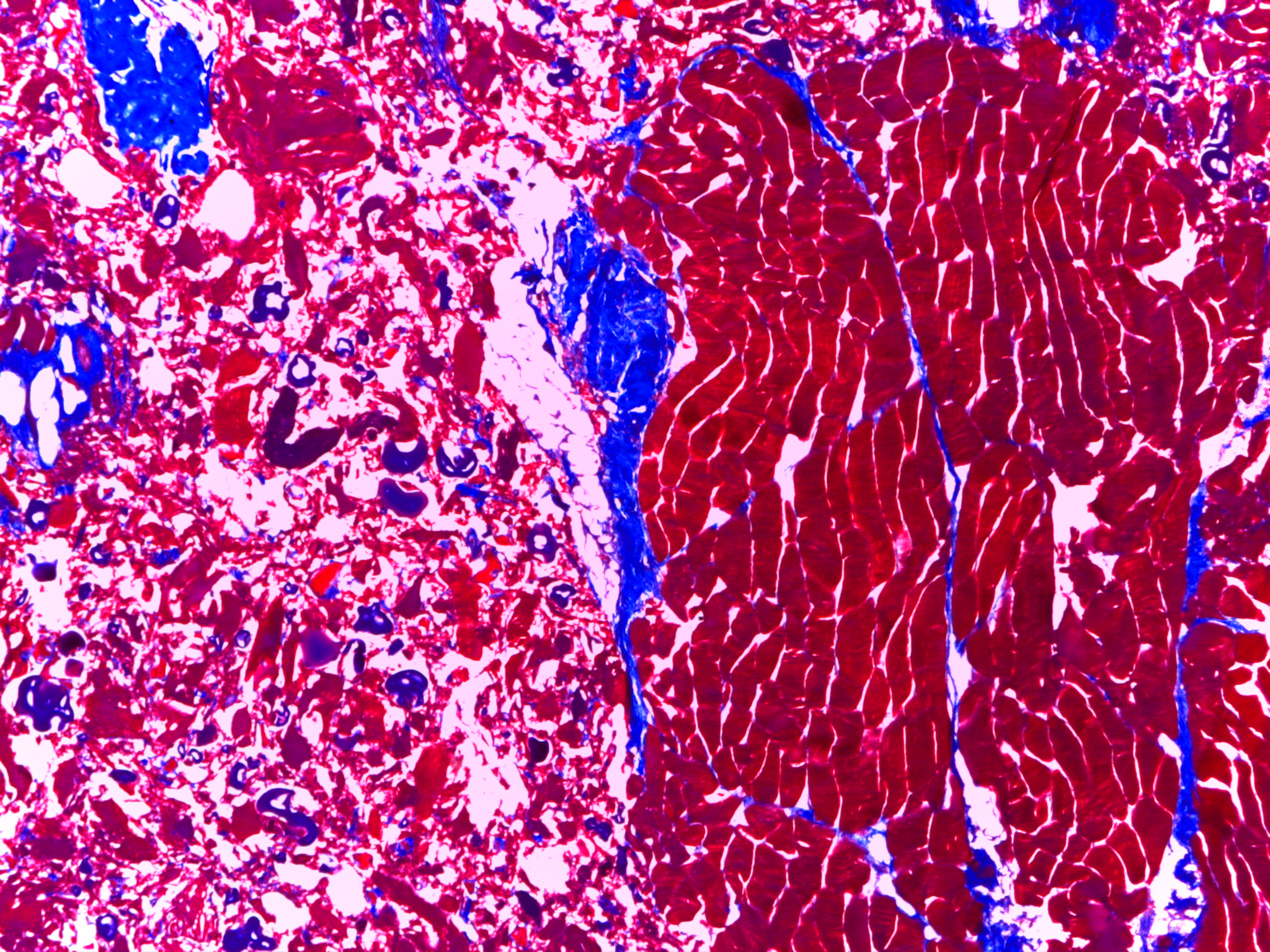 profundiza 1516 microscopio can rafael