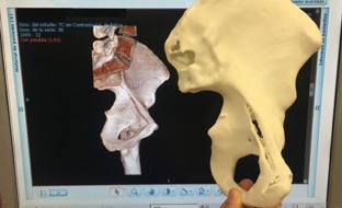 Detalle de la técnica que desarrolla principalmente las unidades de Traumatología y de Osteotomía Pélvica en Displasias de Cadera en el Adulto del Hospital Virgen del Rocío de Sevilla.